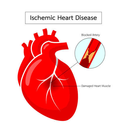 Human heart with Ischemic Heart Disease info graphic.. Blocked artery, damaged heart muscle. Heart awareness concept. Illustration isolated on white background.
