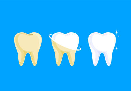 step of whitening tooth. Teeth Whitening. Dental care Concept. Vector illustration isolated on blue background.