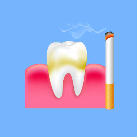 Tooth with cigarette. Smoking effect on human teeth. Dental care concept. Stop smoking, World No Tobacco Day. Illustration on blue background.