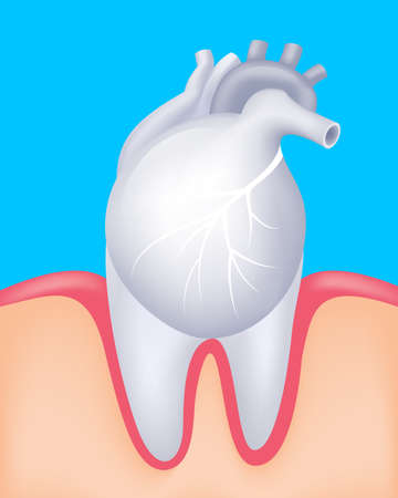 Human heart and tooth as a partner.  Oral health and heart disease hygiene concept caused by dental plaque and gum disease due to mouth bacterial infection. Vector illustration isolated on blue background.