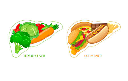 Healthy and unhealthy food in shape of liver. Fatty liver awareness concept.  Vector illustration isolated on white background.