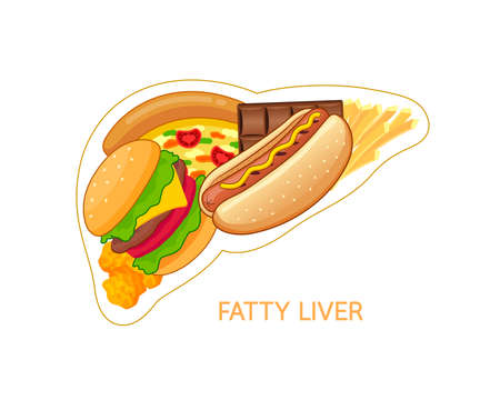 Unhealthy food in shape of liver. Fatty liver awareness concept.  Vector illustration isolated on white background. Ilustracja