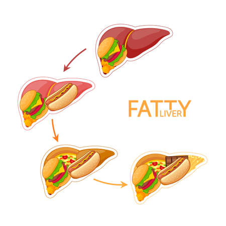 Step of unhealthy food in shape of liver. Fatty liver awareness concept. Vector illustration isolated on white background.