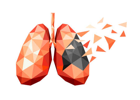 polygonal art of human lung design. Healthy and unhealthy lung. faceted low-poly geometry effect. Abstract anatomy organ. Illustration isolated on white background.