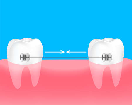 Spacing teeth. Braces to keep the teeth together. Dental care concept. Gums and teeth illustration. Illustration