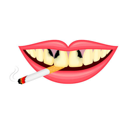 Cigarette in human mouth. Smoking causes damage to the teeth. World no tobacco day. Illustration isolated on white background. Illustration