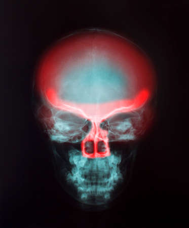 X-Ray Image Of Human  for a medical diagnosis photo
