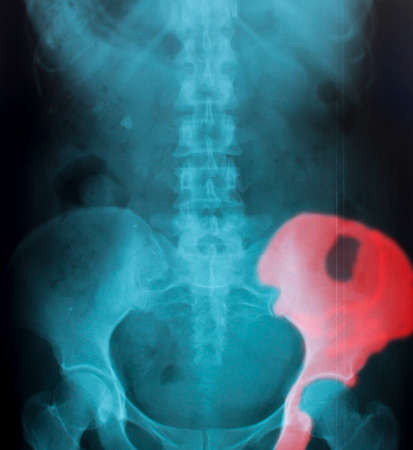 X-Ray Image Of Human  for a medical diagnosis Stock Photo - 26482615