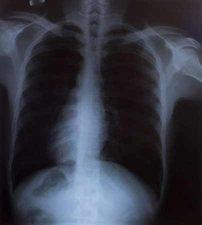 radiological: X-Ray Image Of Human Chest for a medical diagnosis Stock Photo