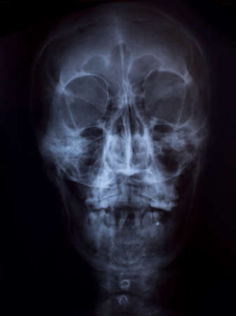 X-Ray Image Of Human Chest for a medical diagnosis Stock Photo - 26483278