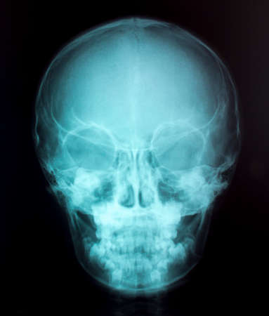 X-Ray Image Of Human  for a medical diagnosis Stock Photo - 26483563