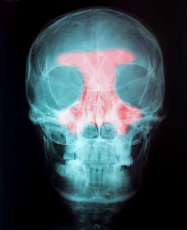 X-Ray Image Of Human  for a medical diagnosis Stock Photo - 26483591