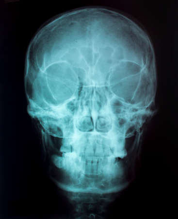 X-Ray Image Of Human  for a medical diagnosis Stock Photo - 26483592