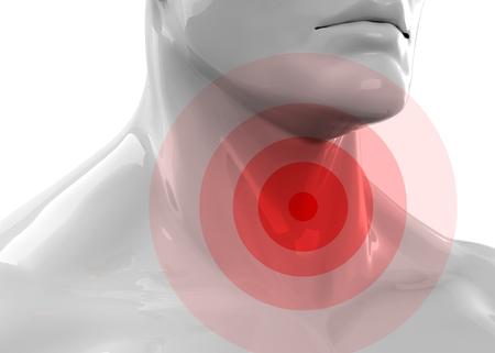 Sore Throat 3d render