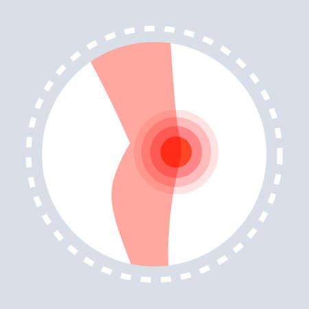 Knieverletzung Gefühl Gelenkschmerzen menschliches Bein Symbol schmerzhafter Bereich hervorgehoben in roter medizinischer medizinischer Dienst Medizin und Gesundheit Symbol Konzept flache Vektorgrafiken