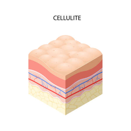 skin with cellulite cross-section of human skin layers structure skincare medical concept flat vector illustration Ilustracja