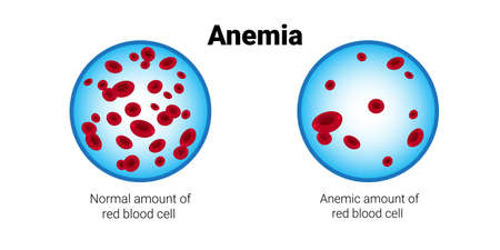 of normal and anemia amount of red blood cells medical board iron deficiency anemia concept horizontal vector illustration