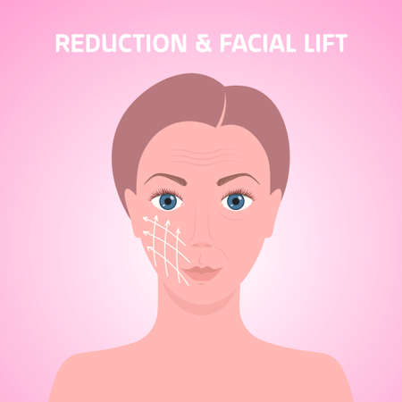female face with marks arrow lines on skin for cosmetic medical procedures facial lift reduction treatment skincare removing wrinkles concept portrait vector illustration Ilustración de vector