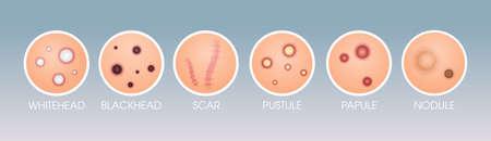 set skin scar whitehead pustule blackhead papule pimples different acne types face pore comedones cosmetology skincare problems concept flat horizontal