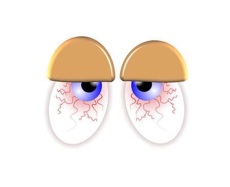 ersch�pft: blutunterlaufenen Augen over white