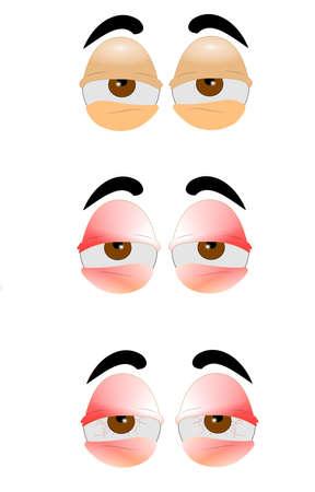 ersch�pft: Augen in drei Arten von schlecht zu schlechter