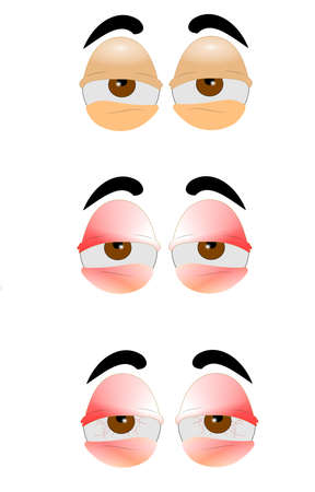 droopy: eyes in three styles from bad to worse