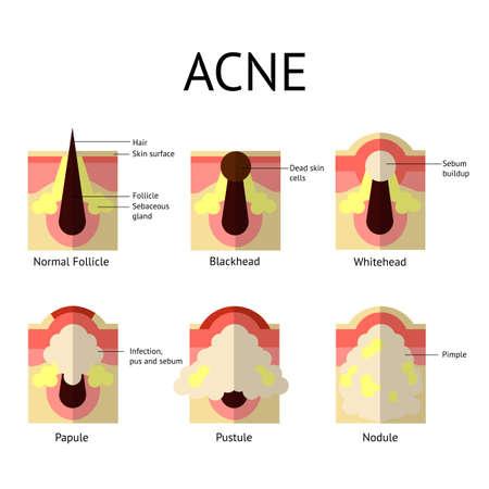 pus: Tipi di brufoli acne. Una pelle sana, brufoli e punti neri, papule e pustole in stile piatto. disegno vettoriale.