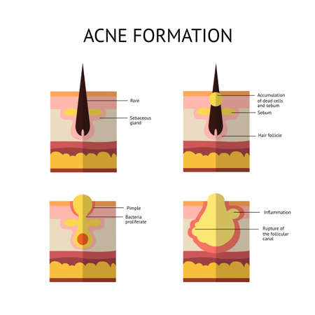 formations: Formation of skin acne or pimple. The sebum in the clogged pore promotes the growth of a certain bacteria. Propionibacterium Acnes. This leads to the redness and inflammation associated with pimples. Vector