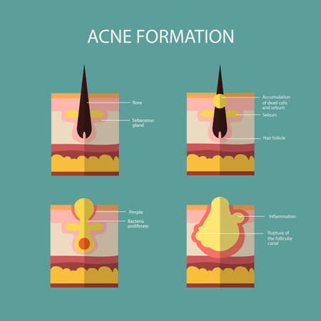 Formation of skin acne or pimple. The sebum in the clogged pore promotes the growth of a certain bacteria. Propionibacterium Acnes. This leads to the redness and inflammation associated with pimples. Vector