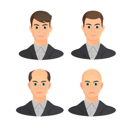 Alopecia concept. Set of heads showing the hairloss progress. Vector flat illustration. Illustration