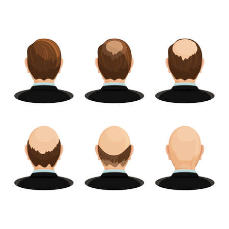 Alopecia concept. Set of heads showing the hairloss progress. Vector flat illustration.