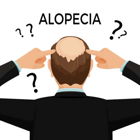 pelade: Alopecia concept. Man is showing his hairloss nape. Vector flat illustration.