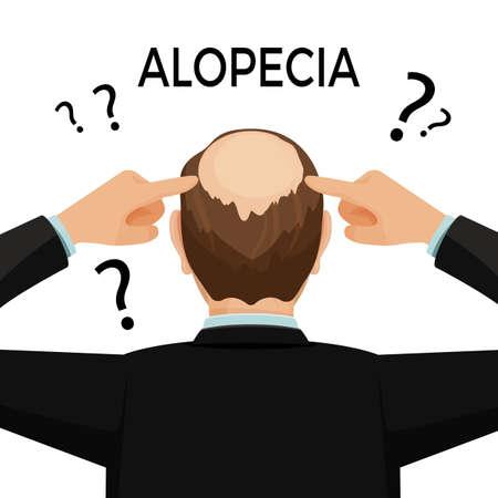 mature men: Alopecia concept. Man is showing his hairloss nape. Vector flat illustration.