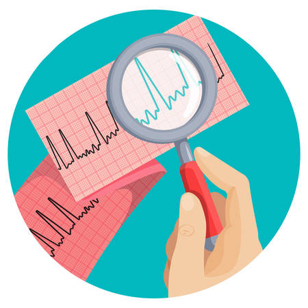 Look on atrial fibrillation through magnifying glass that human hand holds in round vector picture on white. Long piece of paper with ECG scheme of improper heart working, emergency cardiology. 일러스트