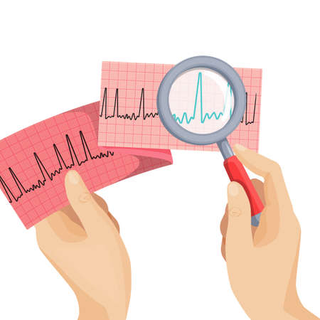 palpitations: Look at atrial fibrillation through magnifying glass held by hand