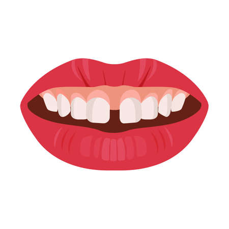 Gap teeth concept. Dental tooth problem and treatment. Dentistry care. Vector