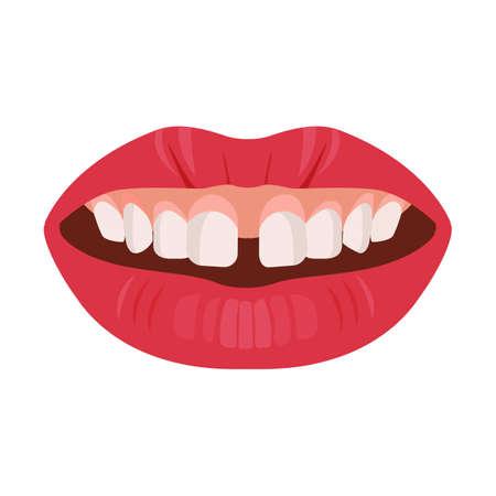 Lückenzähne Konzept. Zahnprobleme und Behandlung. Zahnärztliche Betreuung. Vektor