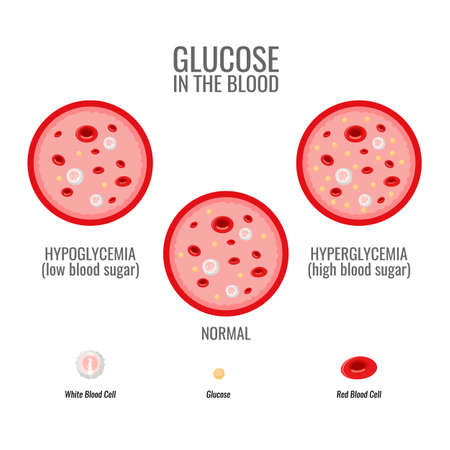 Glucose levels infographic. Vessel and blood health. Vector