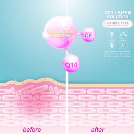 Collagen Serum und Vitamin Hintergrund Konzept kosmetische Hautpflege. Standard-Bild - 61955464