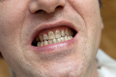 gingivitis: Man with yellow teeth - the harm of tobacco concept  Stock Photo