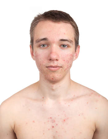 Handsome young man with skin problem on white background