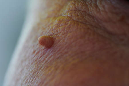 Neoplasm - human papillomavirus on the face of an elderly man, small selective depth of field, defocus, close-up of skin and pores on the surface in the upper part of the cheek.