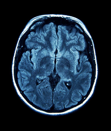 MRI scan of the brain Stock Photo