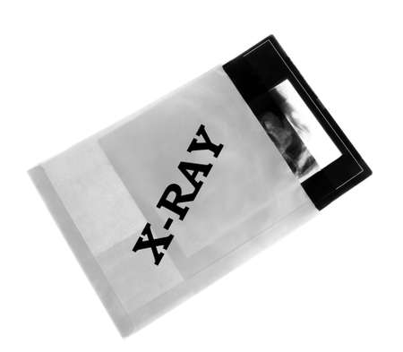 x-ray scan in the envelope photo