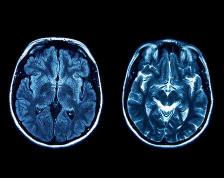 x ray machine: MRI scan of the brain Stock Photo