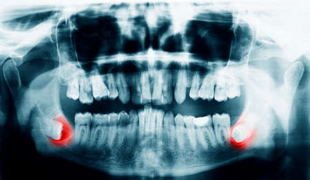 Xray scan of the teeth