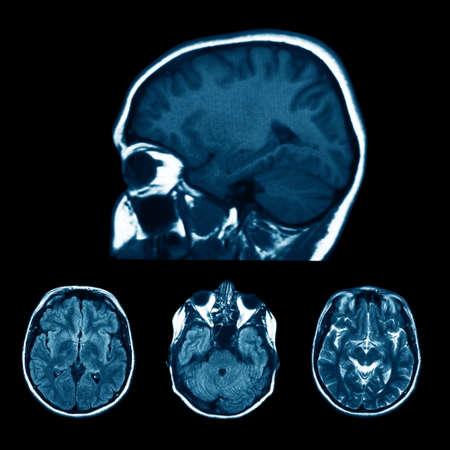 x ray machine: set of MRI scans on black