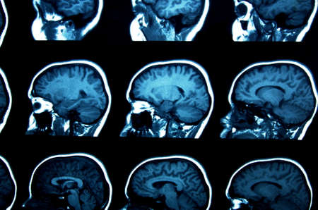 ct scan: set of MRI scans on black