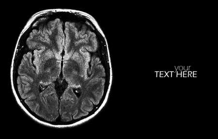 Brain MRI scan on the black