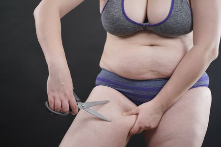 Close image of stomach and legs with excess weight and scissors on black solid studio background